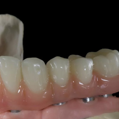 Protezy - implanty zębowe